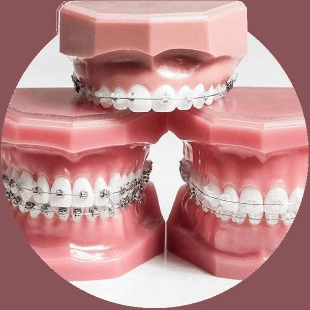 braces-models